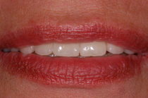Veneers aus unserer Zahnarztpraxis in Nürnberg